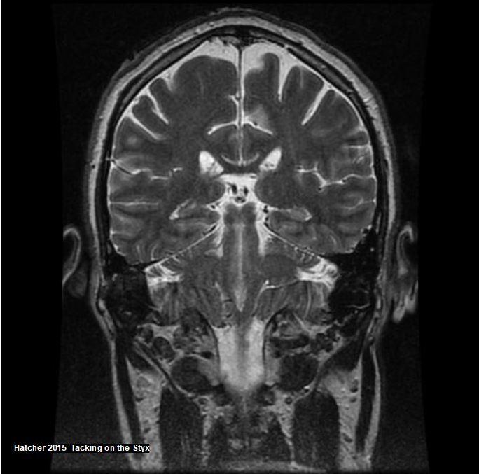 Coronal brain MRI showing  tentorium cerebelli, flocculus, thalamus, colliculus, fornix, cingulate sulcus, cingulate gyrus, parietal lobe.