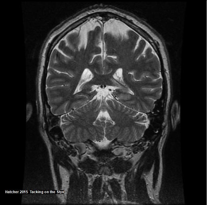 Coronal brain MRI showing cerebellum and lateral ventricle.