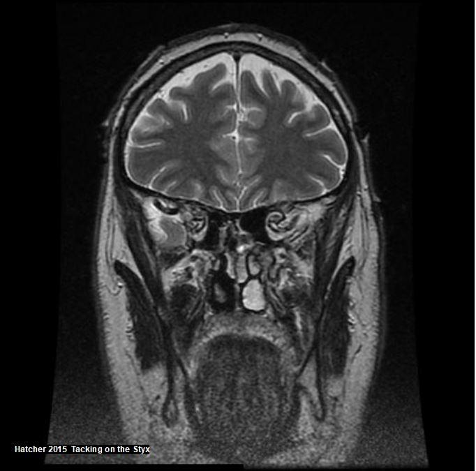 Coronal brain MRI showing masseter muscle, temporalis muscle and frontal lobes.  Jeffrey Lee Hatcher