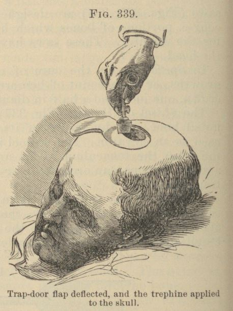 Trephining a patient - a form of brain surgery in the nineteenth century.