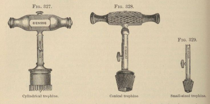 Trephination or trephining was sometimes used to treat epilepsy. Tools shown from The Principles and Practice of Surgery, 1889