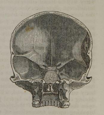 skull interior from Elements of Surgery 1846 Robert Liston