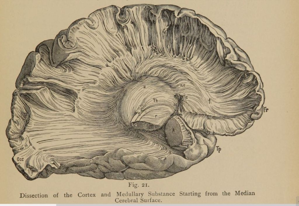 "Dissection of the cortex. From ""Psychiatry: a clinical treatise on diseases of the fore-brain ..."" Theodore Meynert 1885"
