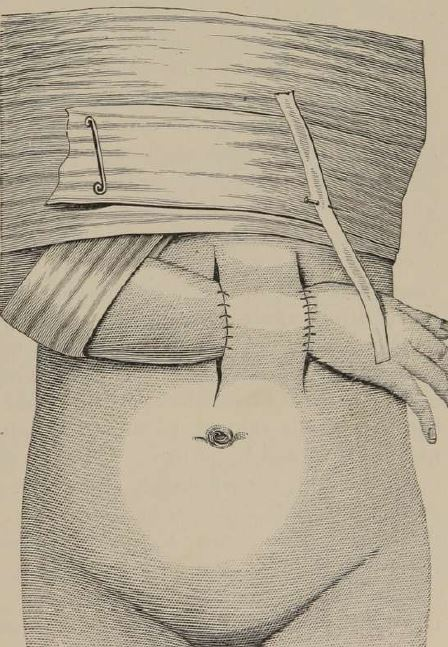 Early skin grafting technique